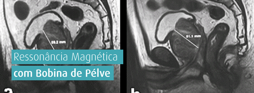 cancer de prostata ressonancia magnetica